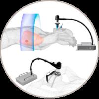 Respiratory Gating